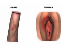 Herpesul genital!