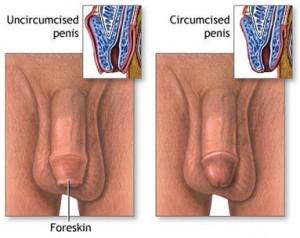 circumcision-fig1