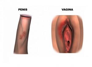 genital_herpes